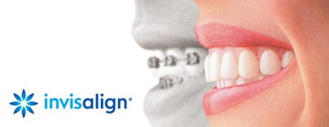 How does Invisalign effectively move teeth