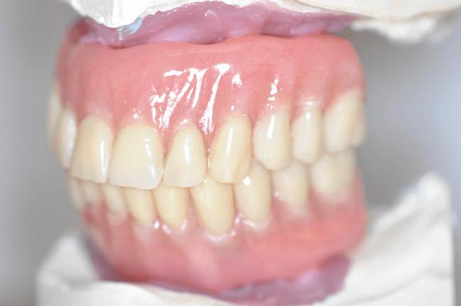 Implant-Bridges-Ready