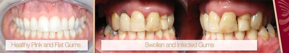 active maintenance dental clean applecross