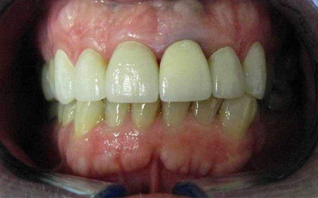 after new crowns and veneers