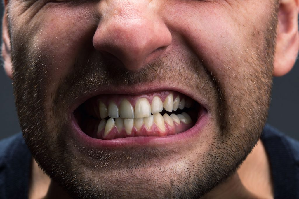 bruxism causes symptoms and solutions