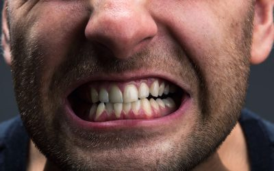 Bruxism – Causes, Symptoms and Solutions