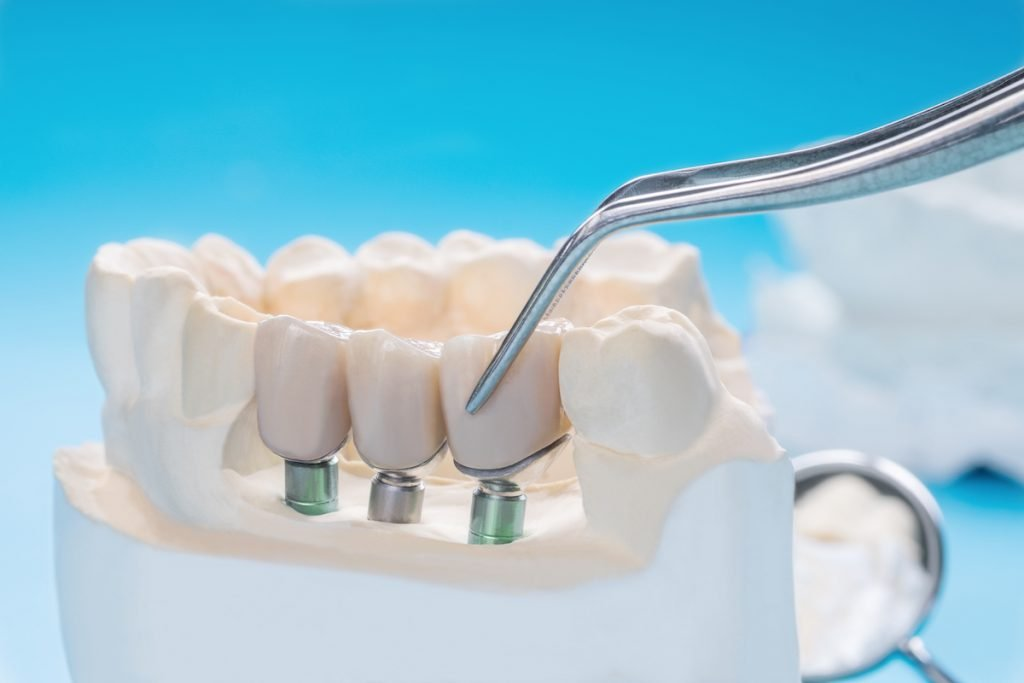 crowns bridges and veneers what you need to know