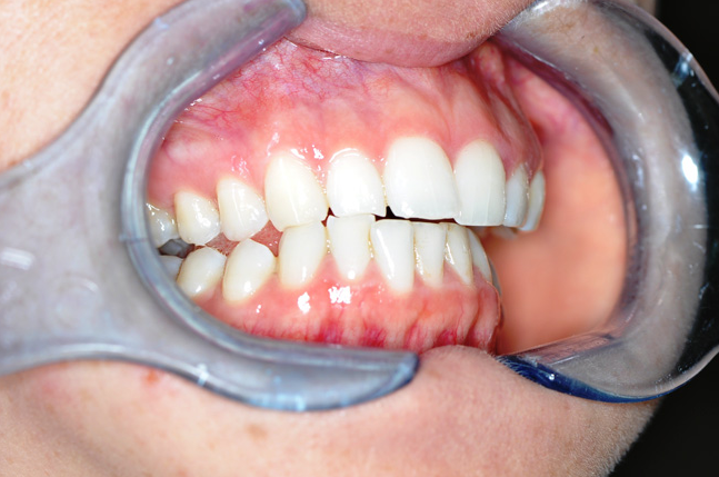 damaged teeth from grinding after