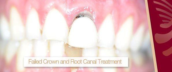 failded crown and root canal treatment