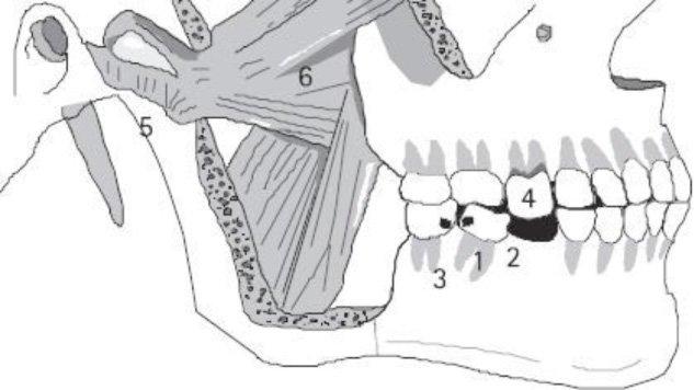 dental implants applecross