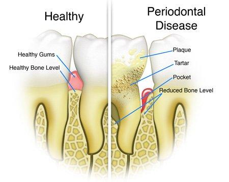 periodontal pockets applecross