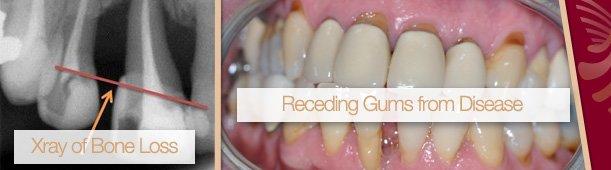 receding gums from disease applecross