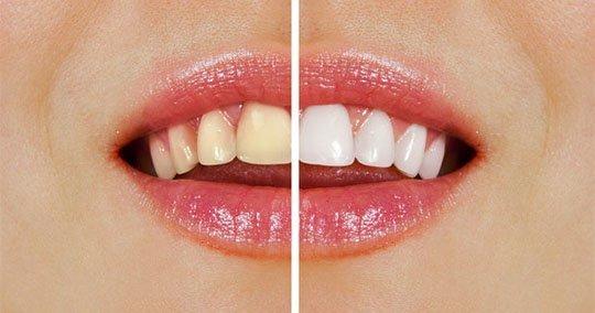 teeth-whitening-applecross