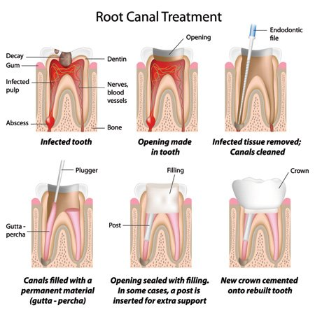 what is root canal treatment applecross
