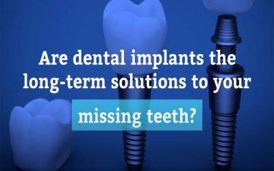 Dental Implants: Long-term Solutions to Missing Teeth